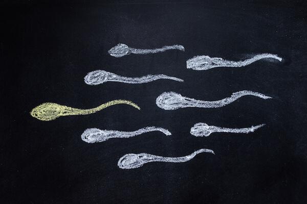 Sperm aneuploidi